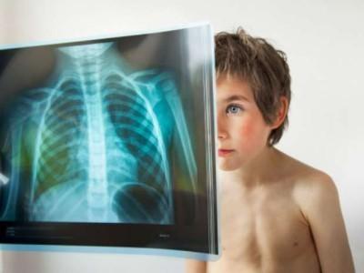 Особенности левосторонней пневмонии у детей. Опасность нижнедолевой формы