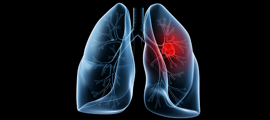 Особенности «Клебсиелла пневмония» у беременных. Что делать, если бактерию обнаружили в мазке?