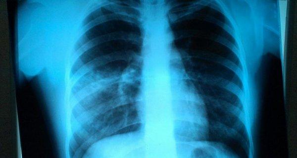 Как выглядит пневмония на рентгене: описание и фото снимков
