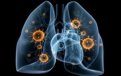 Что такое инкубационный период при пневмонии у взрослых? Чем опасно воспаление легких для окружающих?