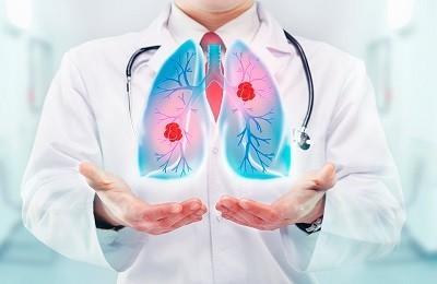 В чем опасность двусторонней и односторонней пневмонии? Симптомы, лечение и народные методы