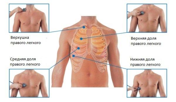 Аускультация легких при пневмонии: какие звуки слышит врач?
