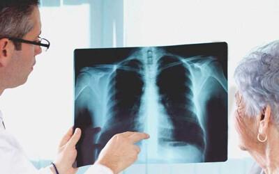 Что такое атипичная пневмония? Каковы признаки ее возникновения?