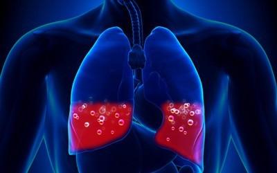 Чем опасна жидкость в легких: причины и лечение отека без неблагоприятного исхода