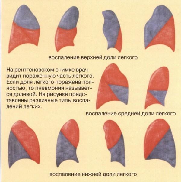 Долевая неуточненная пневмония: нижнедолевая и другие локализации. Что это значит и как лечить?