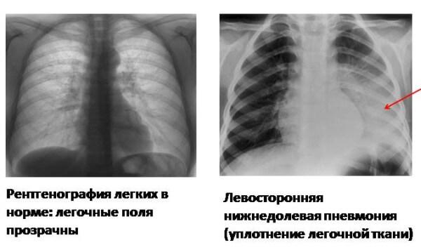 Верхнедолевая пневмония слева у детей