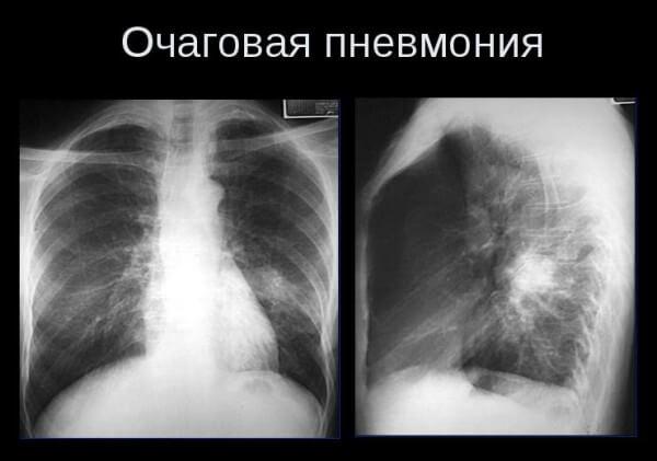 Что такое очаговая (бронхиальная) пневмония у ребенка? Какие особенности у правосторонней формы?