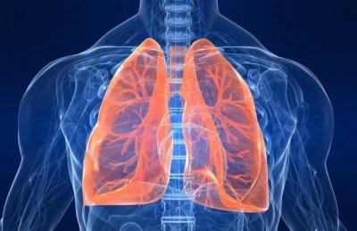 Воспаление легких или пневмония у взрослого человека: все, что необходимо знать о заболевании и его последствиях