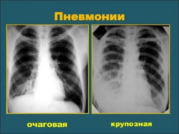 Стоит ли делать флюорографию грудной клетки при пневмонии и покажет ли исследование воспаление легких?
