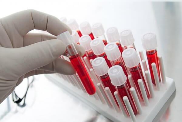 Развитие пневмонии на ИВЛ: от чего зависит неблагоприятный исход?