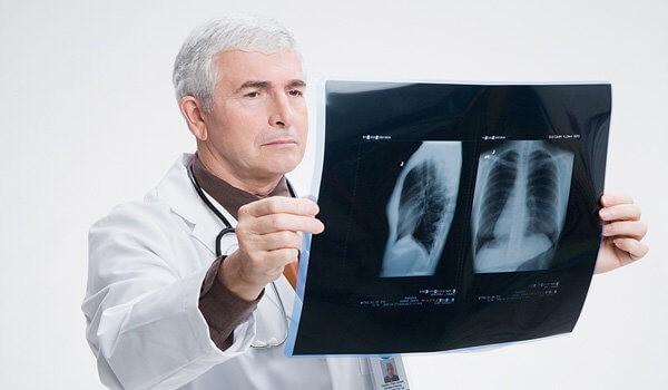 Можно ли вылечить пневмонию без антибиотиков?