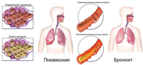 Проявления температуры и кашля у взрослых при пневмонии. Как распознать воспаление легких без них?