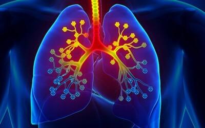 Симптомы, диагностика и лечение эозинофильной пневмонии (синдром Леффлера)