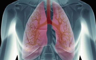 Что такое пневмоцистная пневмония (пневмоцистоз)? Симптомы и лечение ВИЧ-инфицированных