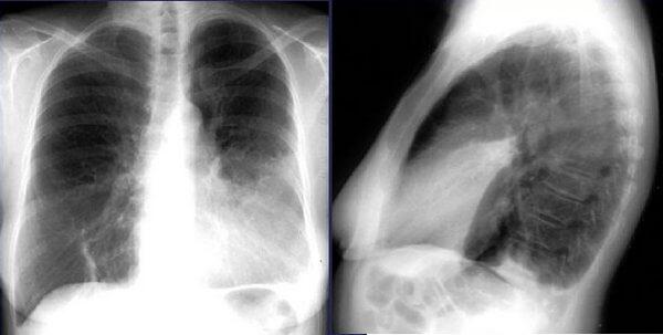 Пневмония в язычковом сегменте левого легкого