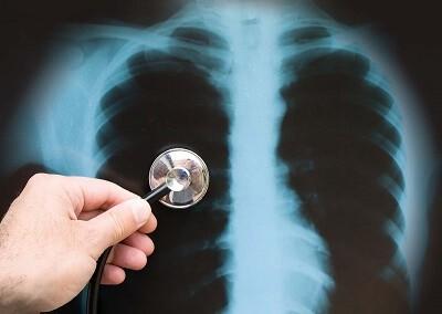Степени пневмонии: легкая степень тяжести и другие, а также их проявление