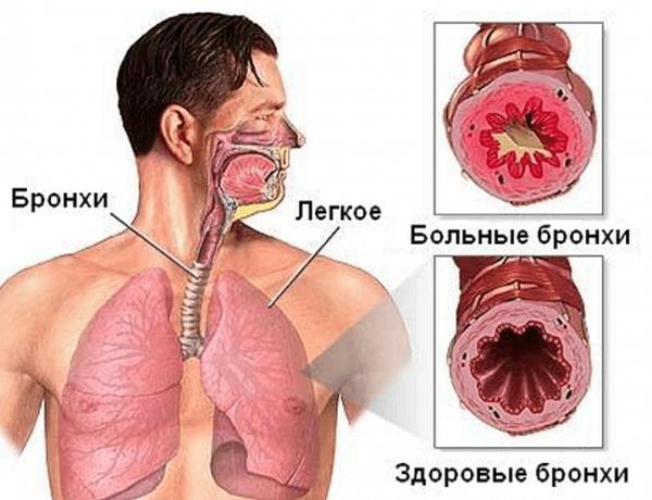 Пневмония или бронхит: симптомы и признаки, которые помогут отличить одно заболевание от другого