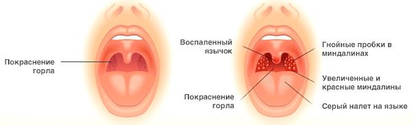 Вторичные симптомы бронхита: как и где может болеть?