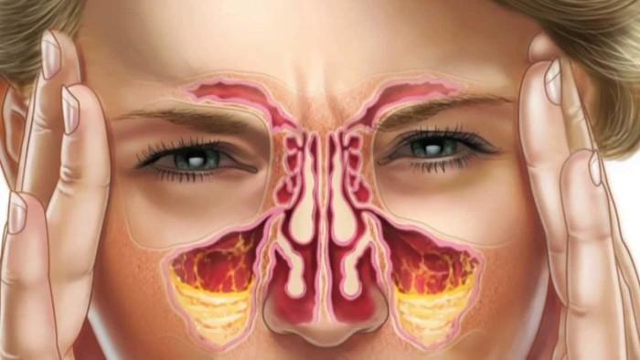 Существует ли у Вас предрасположенность к развитию пневмонии?