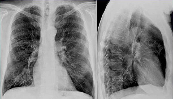 Что такое метатуберкулезные изменения в легких и почему они возникают?