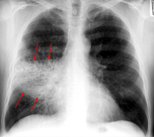 Рентгенологическое описание пневмонии