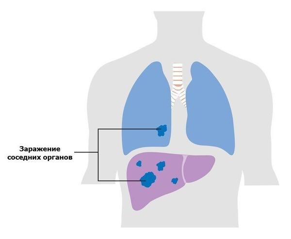 Что такое плоскоклеточный рак легкого? Симптомы, лечение и прогноз на разных стадиях заболевания
