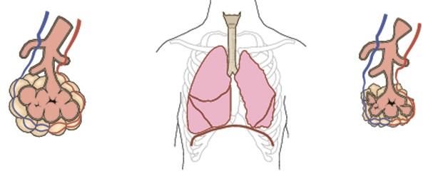На картинке изображена ателектатическая пневмония