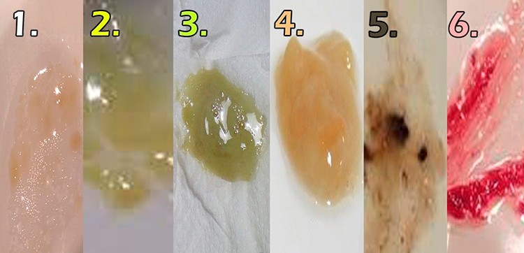 На картинке изображено фото разных видов мокрот