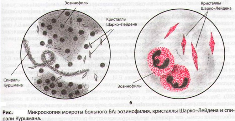 На картинке изображено исследование мокроты