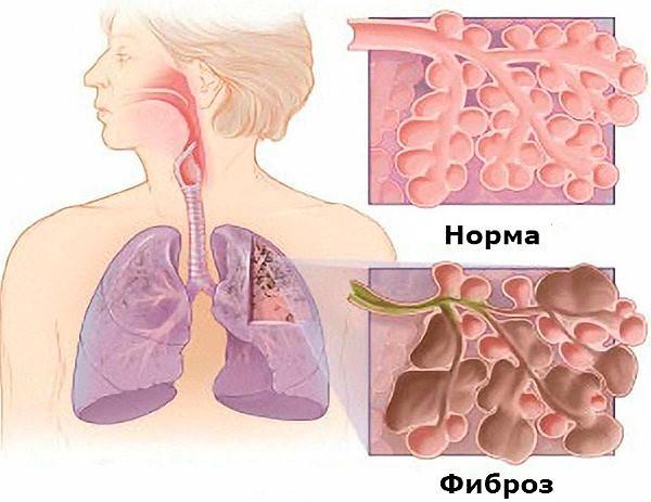 На картинке изображен лучевой фиброз легких