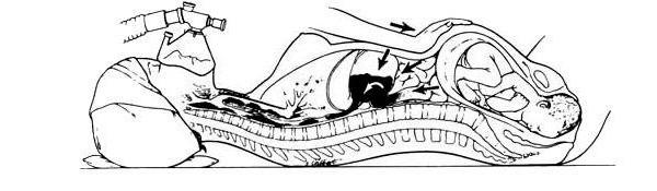 На картинке изображен механизм заброса содержимого желудка в дыхательные пути у беременных в родах