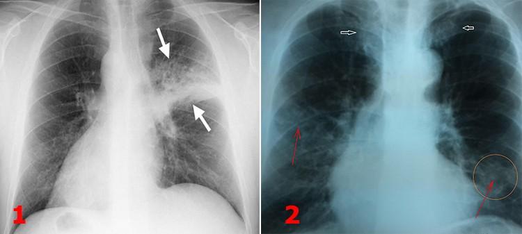 На картинке изображены 1. односторонняя пневмония 2. двустороннее воспаление