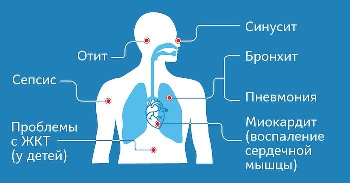 На картинке показаны осложнения коронавирусной инфекции