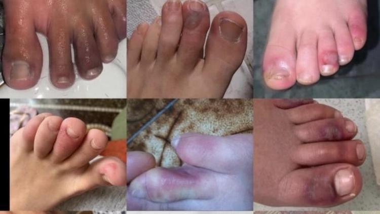 На фото изображены «ковидные» пальцы