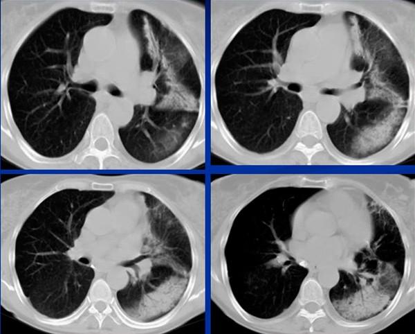 На картинке изображена радиационная пневмония на КТ