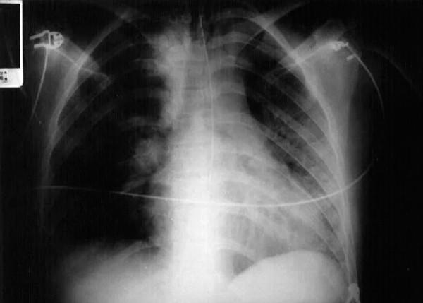 На картинке изображена обзорная рентгенограмма грудной клетки пациента с аспирационной пневмонией левого легкого после передозировки бензодиазепинами. Пациент лежал на левом боку в момент аспирации