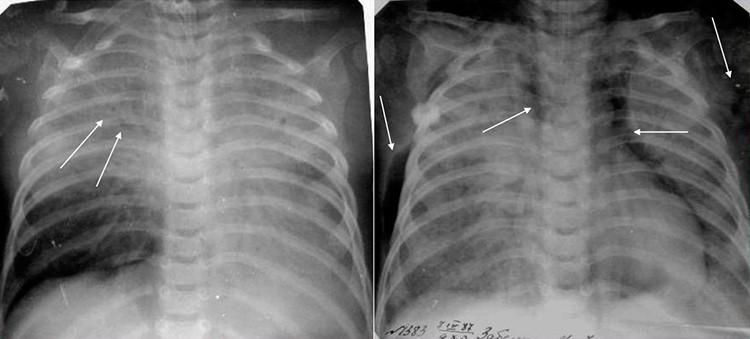 На картинке изображена синегнойная пневмония на рентгеновском снимке