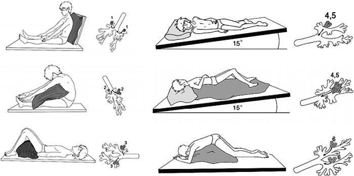 На картинке изображена схема дренажных положений по Кендигу