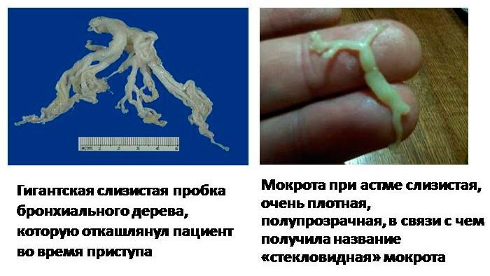 На картинке изображены слизистые пробки в бронхах при бронхиальной астме