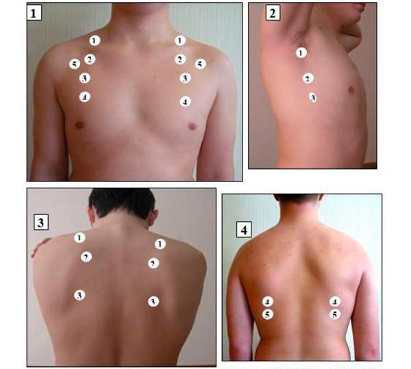 На картинке изображены точки и порядок аускультации легких
