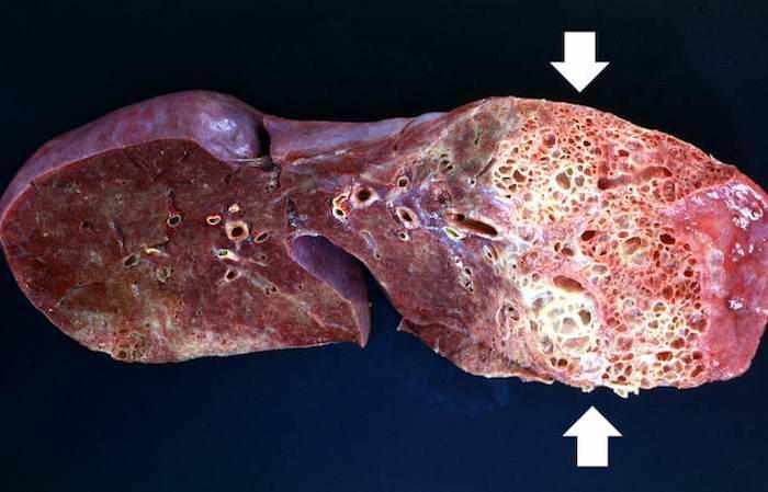 На фото показана эмфизема легких на макроперпарате
