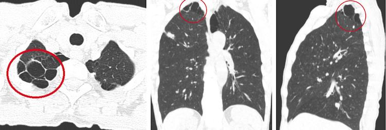 На фото изображена КТ-картина буллезной эмфиземы легких