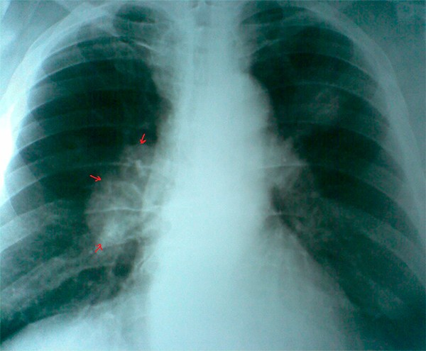 На картинке изображен рак легких на флюорографии