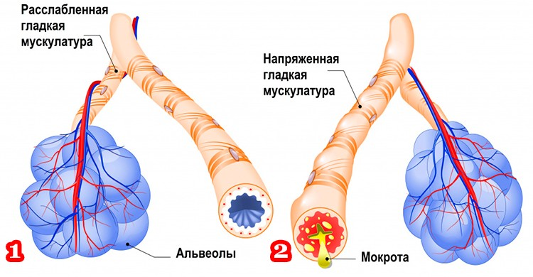 На картинке изображено: 1. Здоровые бронхи; 2. Бронхи с астматическим. компонентом