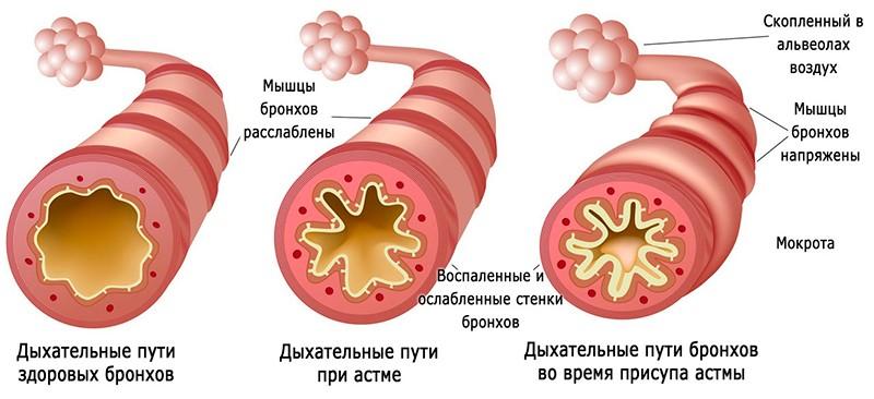 На картинке изображена бронхиальная астма во время приступа