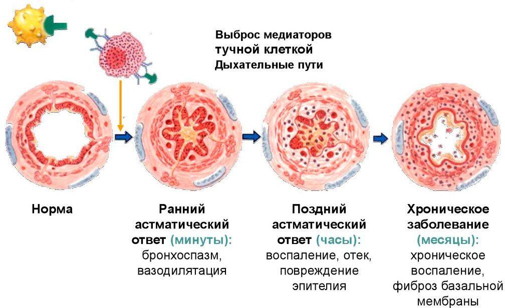 На картинке изображен патогенез бронхиальной астмы